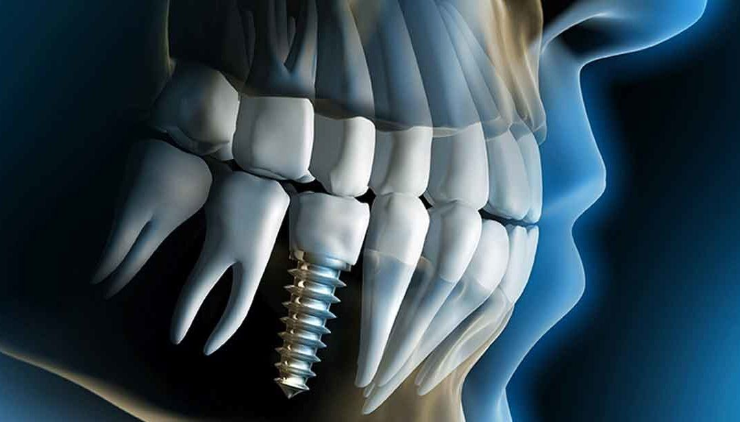 How much do dental implant cost in Tijuana?