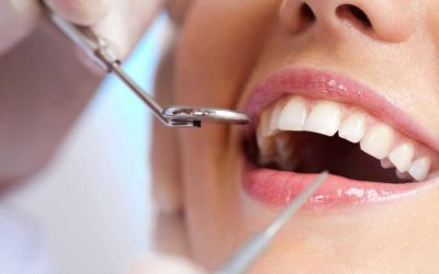 Cosmetic Dentistry in Tijuana